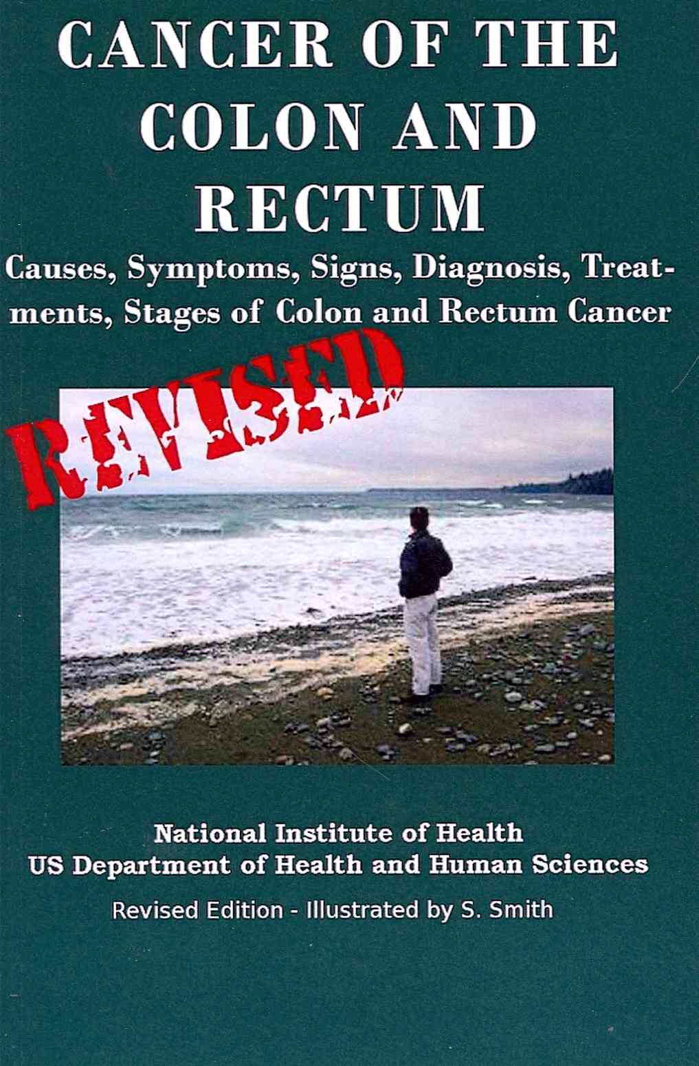 Cancer of the Colon and Rectum By Department of Health and Human Services/ National Institutes of Health/ National Cancer Institute/ Smith, S./ Smith, S. (ILT)